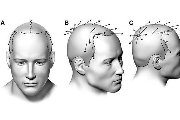 Natural hairline hair transplant in gujarat