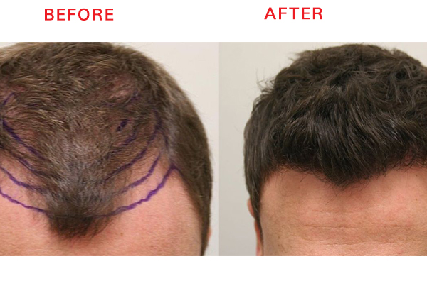 Natural hairline hair transplant