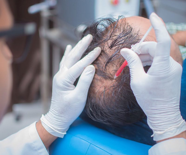 PRP Hair Transplant In Gujarat, India